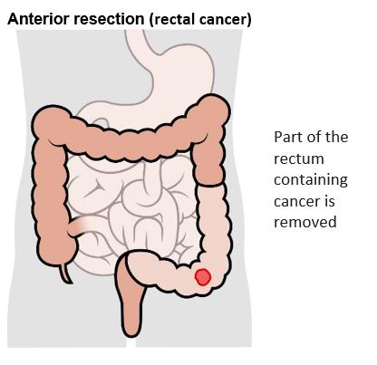 cancer rectosigmoidian)