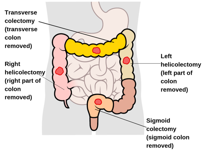 Types Of Surgery For Colon And Rectal Cancer Irish Cancer Society
