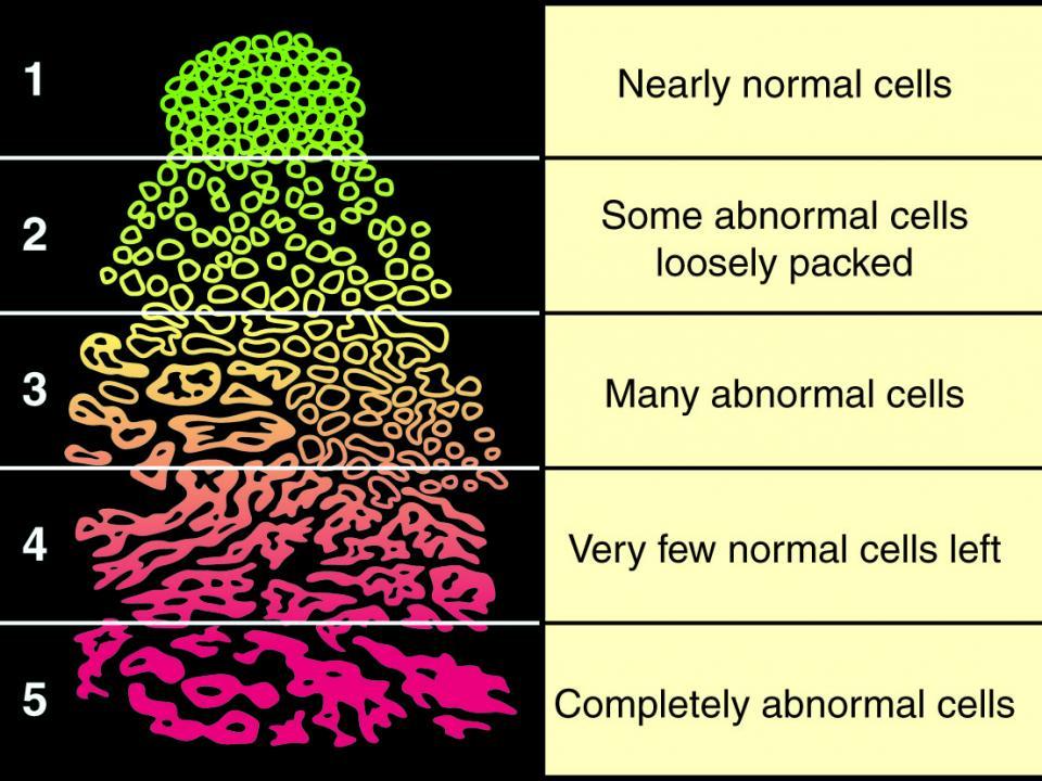 Posztoperatív prosztata adenoma