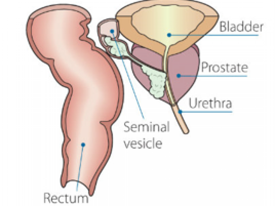 Múmia pri prostatitis