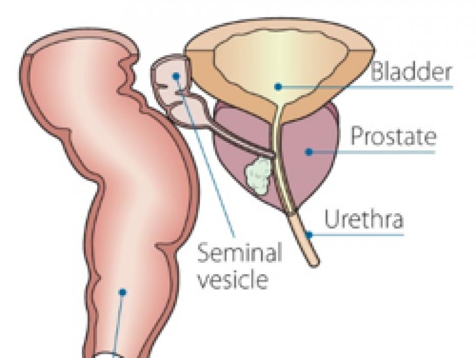 my dad has stage 4 prostate cancer Rak végbél és prosztatitis