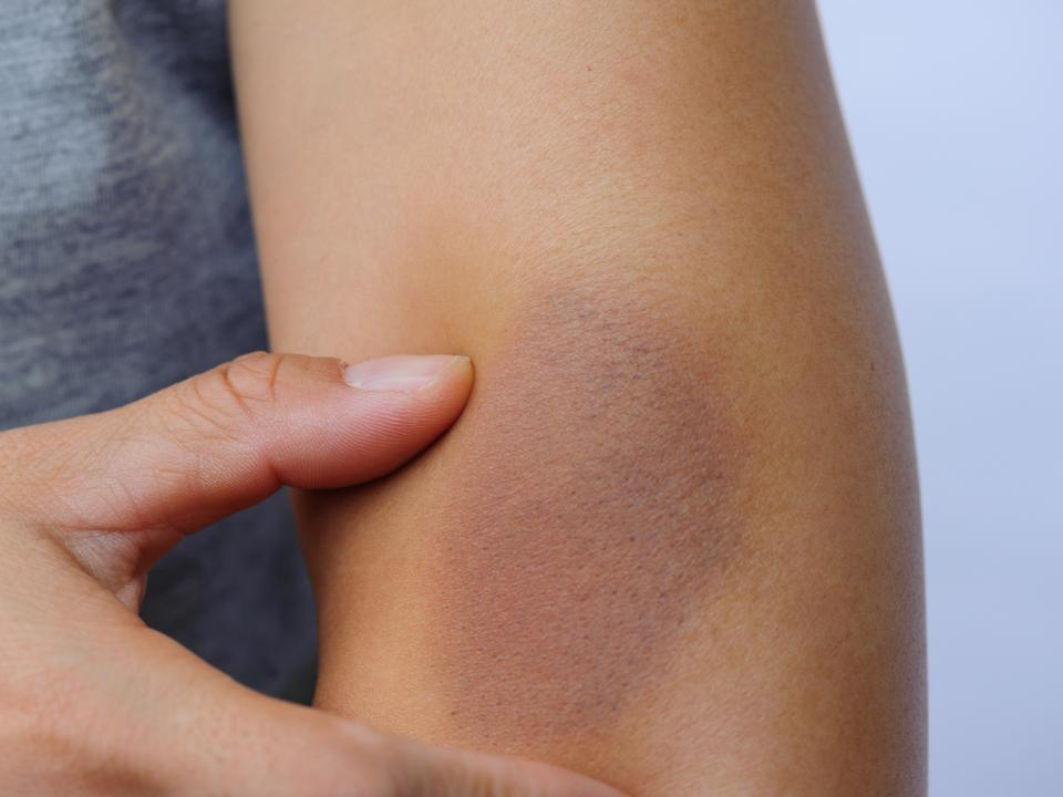 Bleeding Bruising And Blood Clots Irish Cancer Society