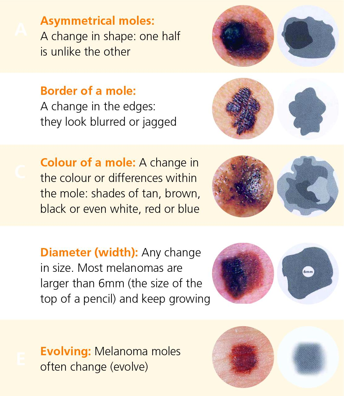 Symptoms And Diagnosis Of Melanoma Irish Cancer Society
