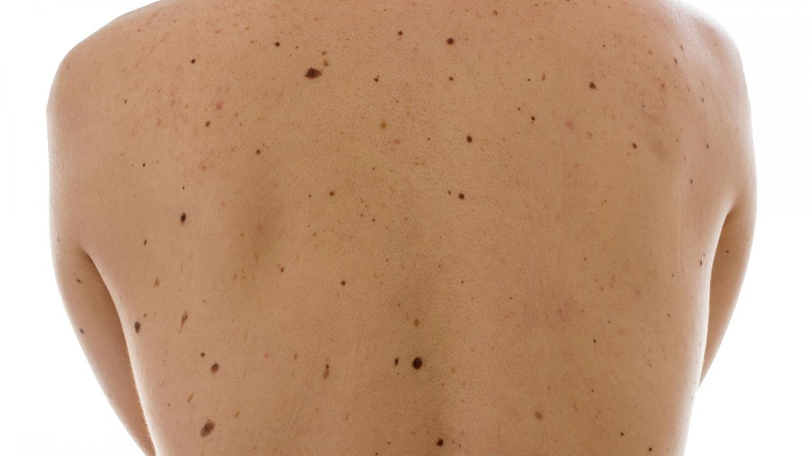 A person with a large number of moles