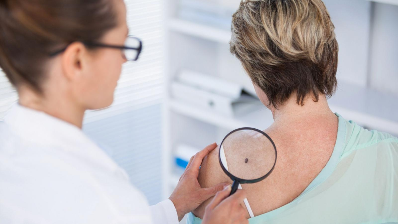 Checking Your Skin For Changes That Could Be Skin Cancer Irish Cancer Society
