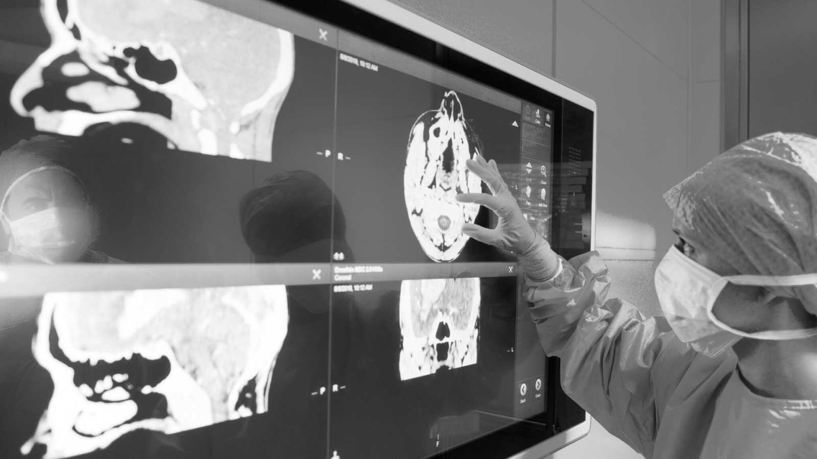 doctor examining brain scans